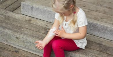 Stop Scratching Itchy Bug Bites! Home Remedies That Offer Relief, Naturally